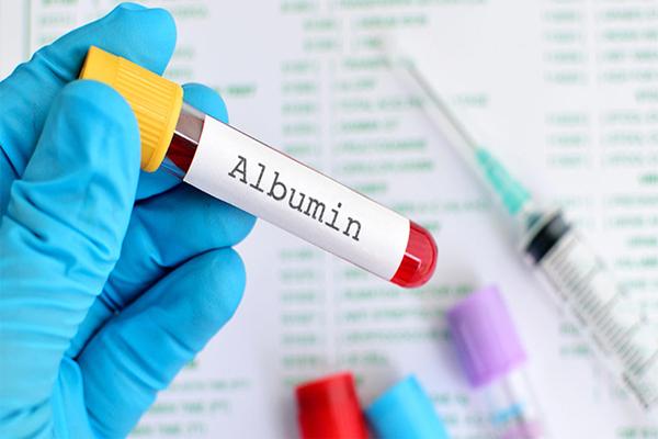 Chỉ số xét nghiệm Albumin trong máu