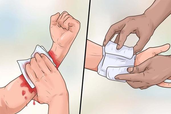 Sơ cứu cầm máu đối với vết thương chảy máu ngoài